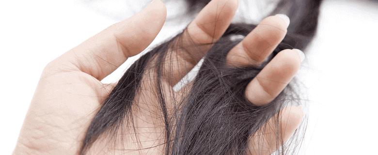 Frauen Arten von Haarausfall