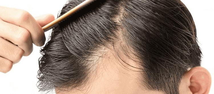 Mittel gegen Haarausfall Anwender
