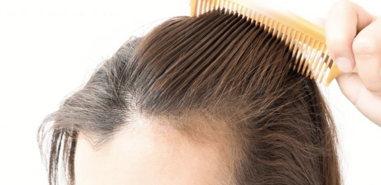 Studie zu Haarausfall bei Frauen